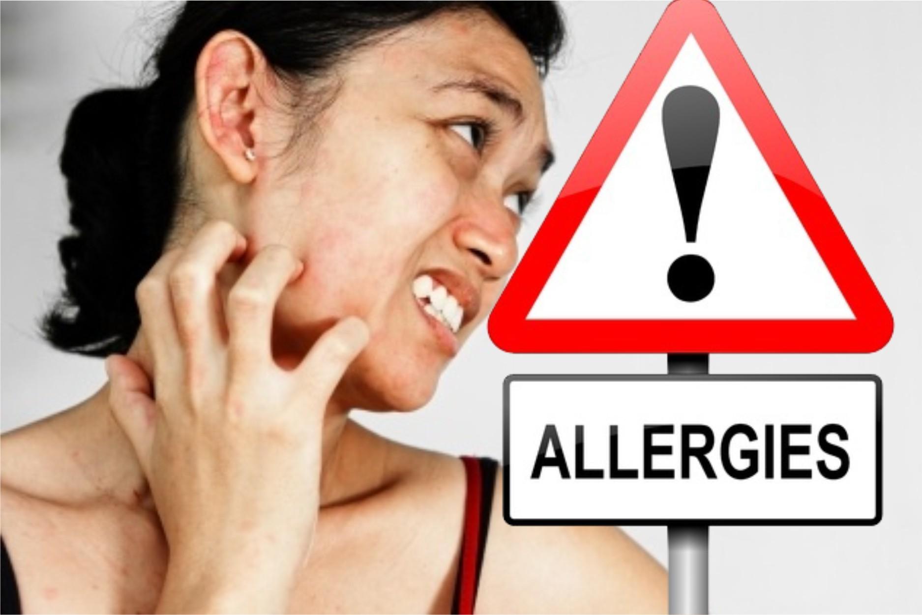 tips-sembuhkan-alergi